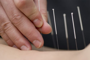 Acupuncture-2
